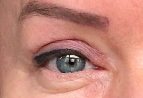hoe werkt een ooglidcorrectie